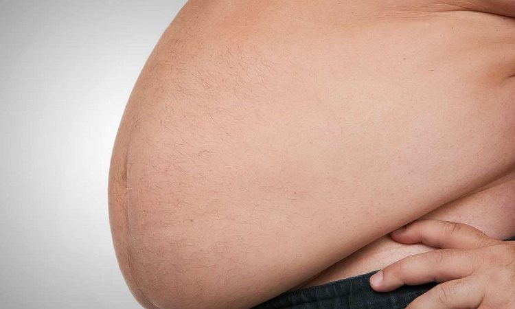 5 Ways to Deal with Obesity