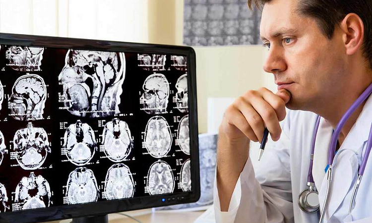 Neurological Workings: The Scans That Can Help You Better In Understanding