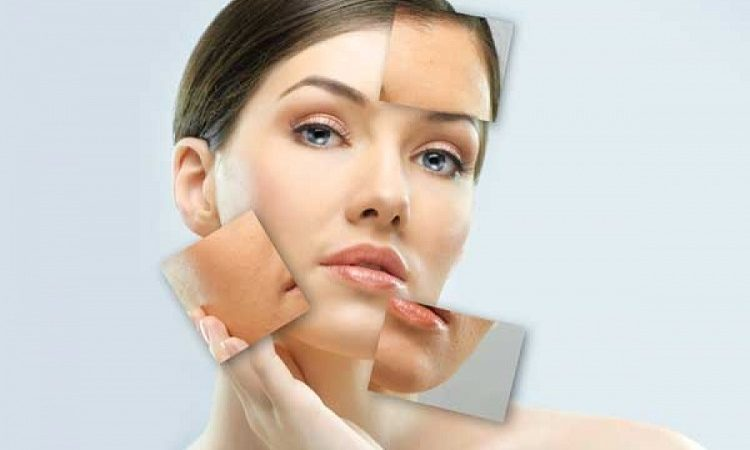 Microdermabrasion – A perfectly effective & professional skin treatment